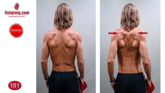 Tonificación espalda columna dorsal