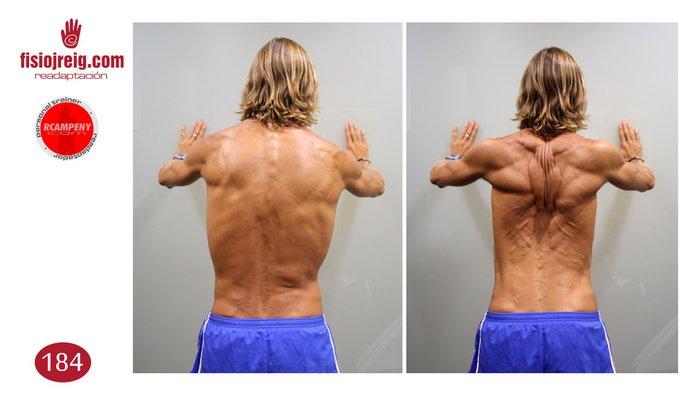 Trabajo musculatura dorsal
