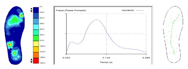 Análisis biomecánico Run Concept
