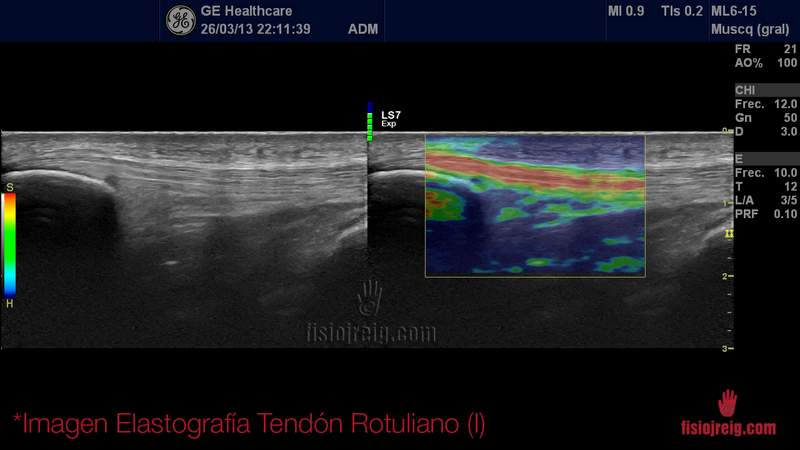 Elastografia tendon rotuliano