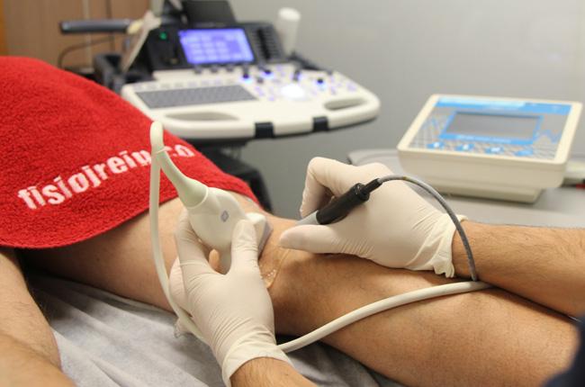 Electrólisis percutánea musculoesquelética EPM fisoinvasiva