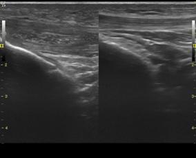 Imagen comparativa tendón lesionado con tendón sano