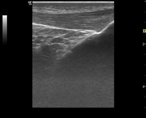 Imagen del tendón al final del tratamiento