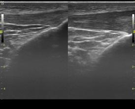 Imagen comparativa del tendón derecho con el tendón izquierdo al final del tratamiento