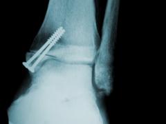 Fisioterapia traumatológica radigrafía
