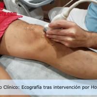 hoffitis caso clinico