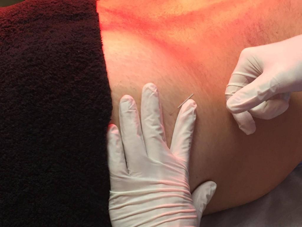 punto gatillo glúteo medio tratamiento lumbalgias