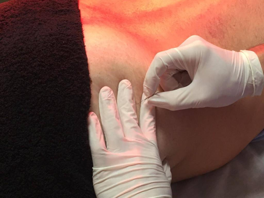 Punto gatillo glúteo menor tratamiento bursitis de cadera