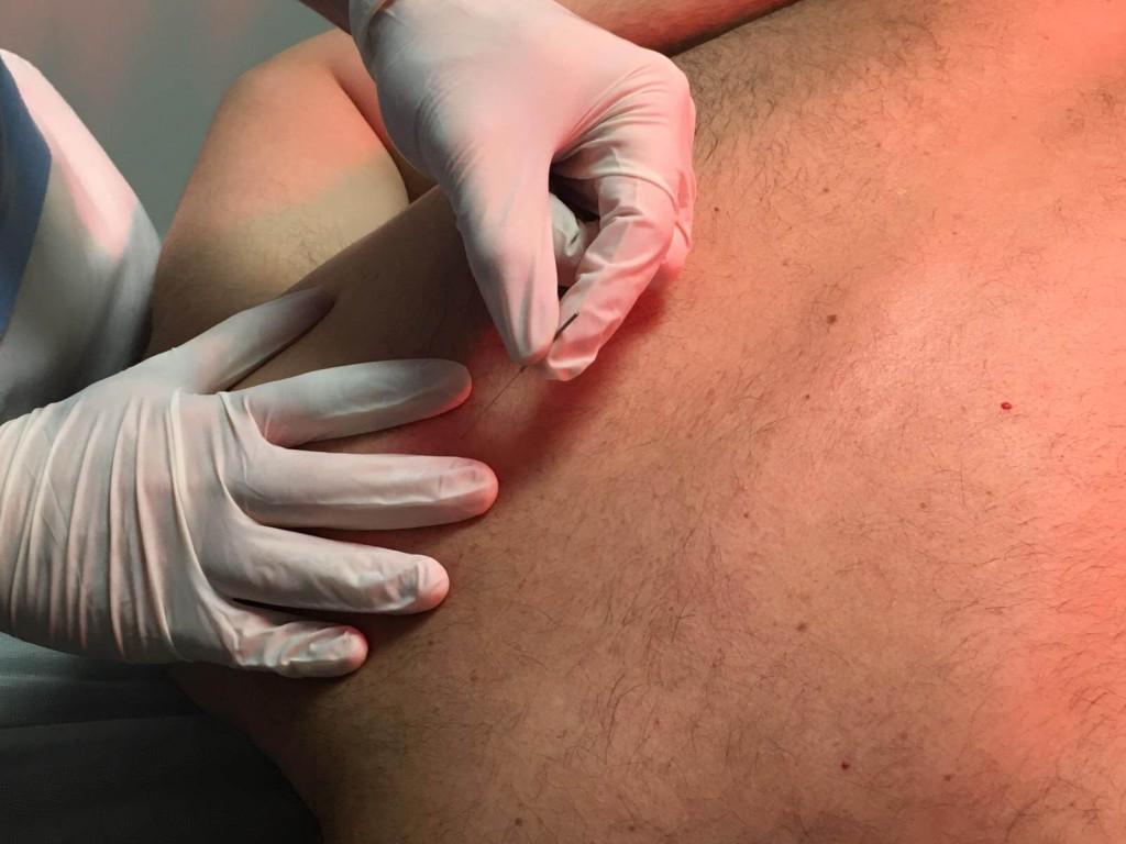 Punto gatillo serrato postero-superior tratamiento torticolis