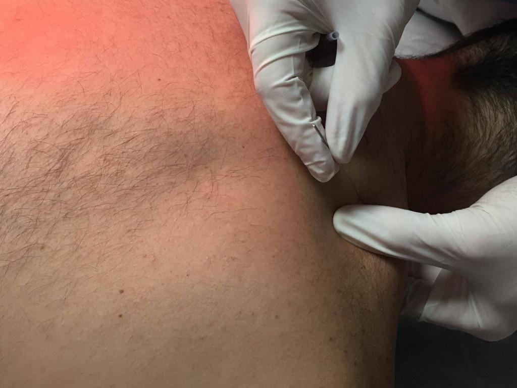 Punto gatillo trapecio superior tratamiento cervicalgias, tortícolis, dolores de cabeza