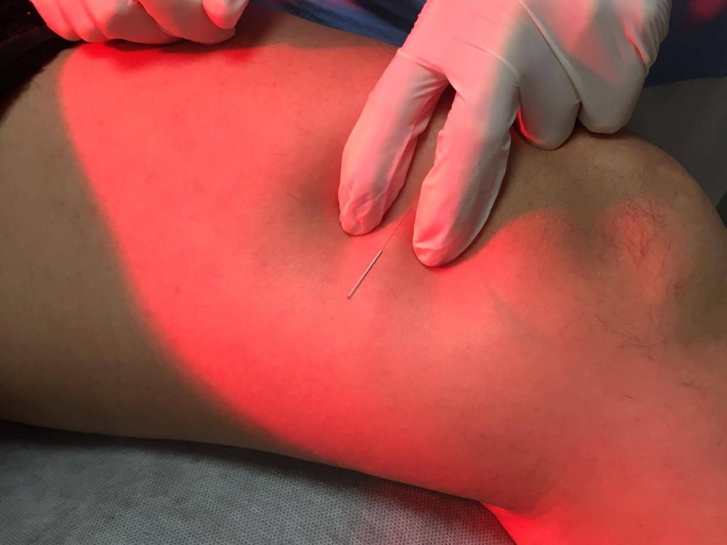 punción seca punto gatillo vasto interno tratamiento meniscopatias